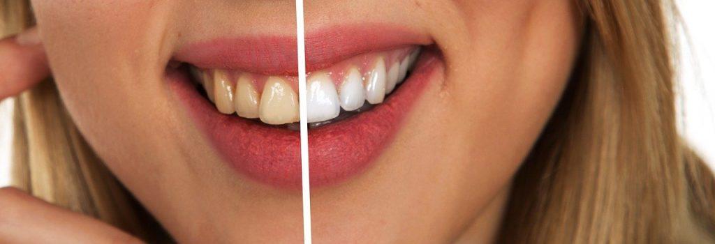 diventare igienista dentale 4